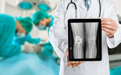 Needing a Knee Replacement? What to expect…