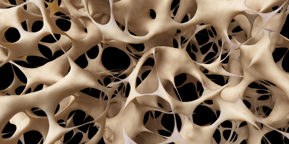 Osteoporosis can be erased with physical therapy - Hampton PT